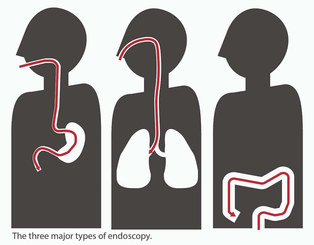 endoscopy types caption-01-01